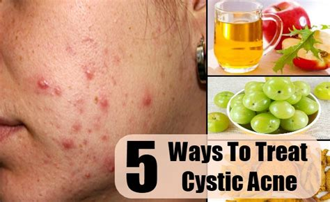 treating cystic acne picture 7