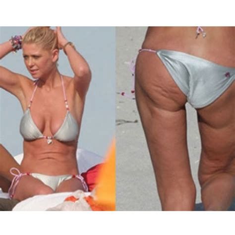 celebrity cellulite pictures picture 10