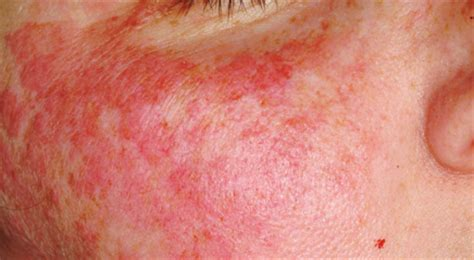 discoid rash with candida picture 5