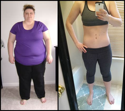 weight loss 6 months after gastric sleeve picture 6