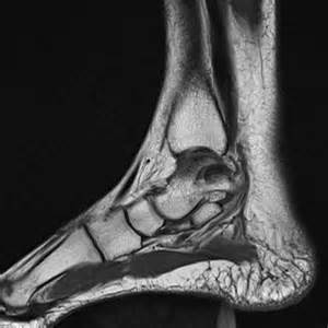 ankle joint effusion picture 11
