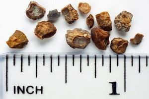 Cholesterol measurement picture 3
