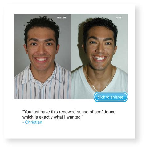 arctic teeth whitening picture 5