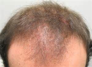 scalp conditions that cause hair loss picture 1