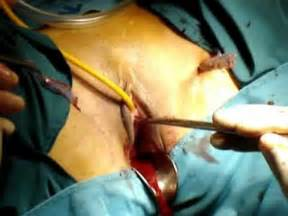 bladder surgery sling procedure picture 2