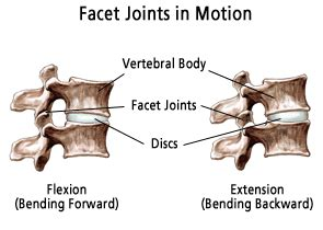 facet joint fusion picture 18