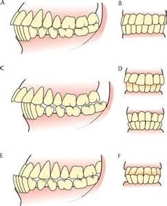 overbite teeth picture 7