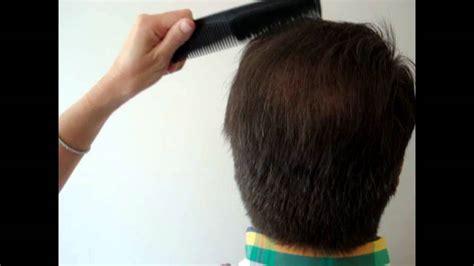 avodart hair loss results 2006 picture 3