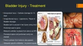 bladder damage from antibiotics picture 2