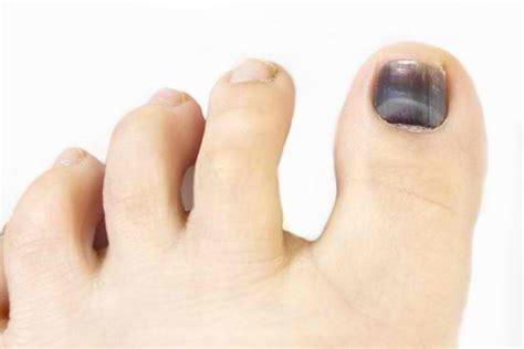 toenail fungus under nail black picture 5