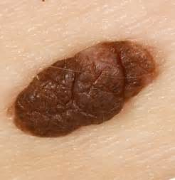 hair growth from genital wart picture 3