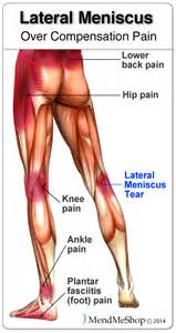 meniscus muscle picture 17