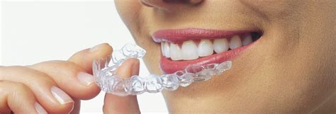 align of teeth after braces picture 10