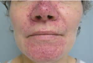 acne from chemo picture 6