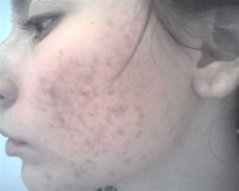 post acne scars picture 6
