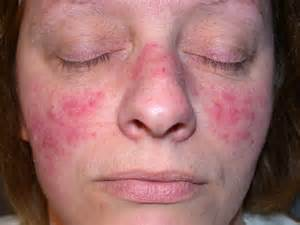 where i can found acnevir acne & redness picture 3