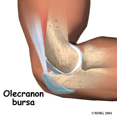 bursitis in many joints picture 6