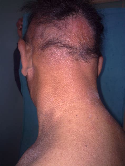 what do you do for an enlarged thyroid picture 7