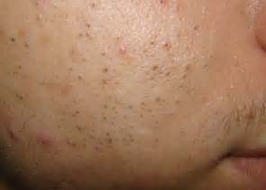 acne vs blackheads picture 9