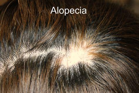 allopetia picture 11