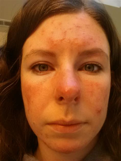acne statin reviews picture 14