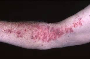 herpes rash picture 13