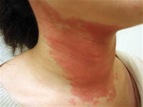 about skin rashes on the neck area picture 11