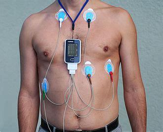 Ambulatory blood pressure monitoring picture 7