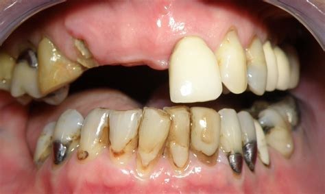 plano teeth whitening picture 6