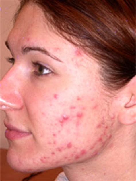 acne graves disease picture 11