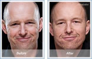 before and after for men anti aging picture 9