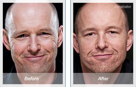 before and after for men anti aging picture 7