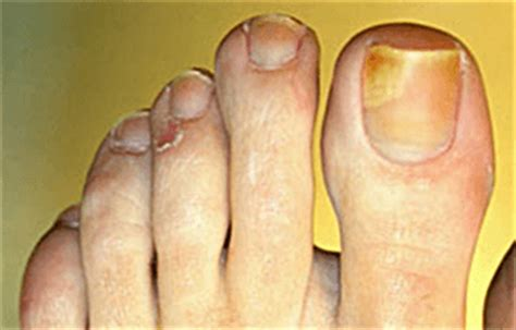 fungus under toe nails picture 14