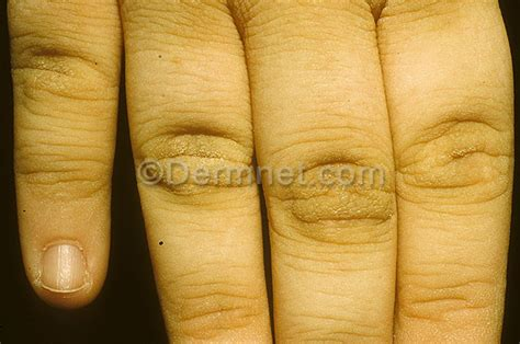 skin infection with knuckle pain picture 9