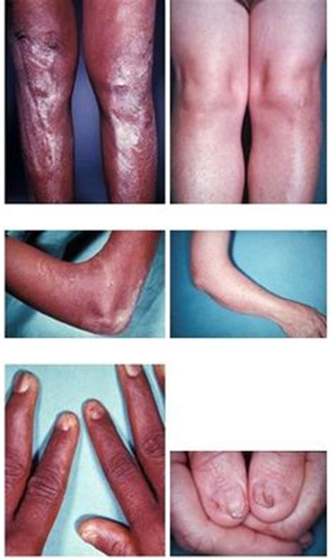 i got rid of nail fungus by picture 5