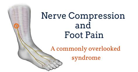 joint and nerve pain picture 7