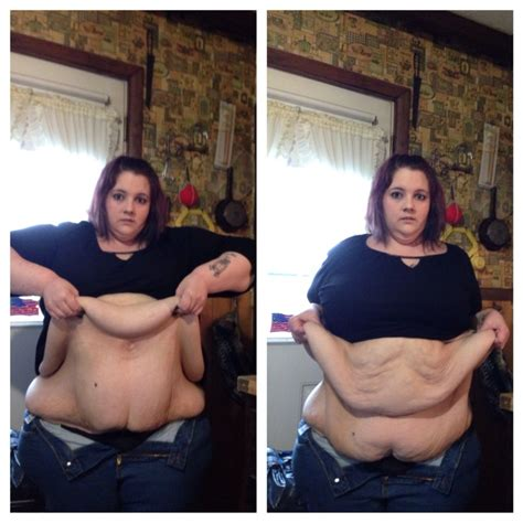 weight loss 6 months after gastric sleeve picture 15