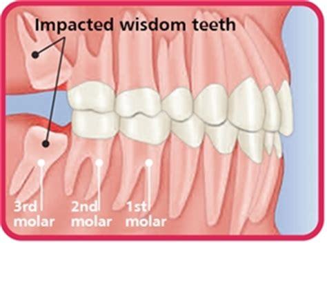 cavities in wisdom h picture 18