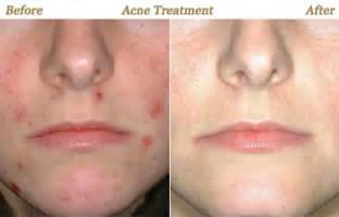acne reducing birth control picture 5