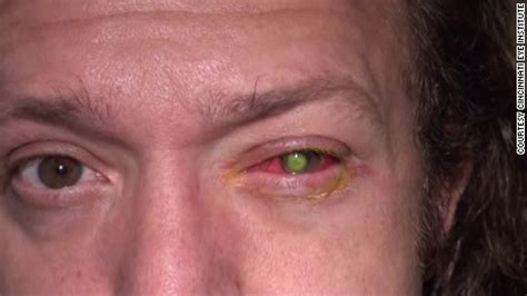 contact lense ers getting bacterial infection in eyes picture 5