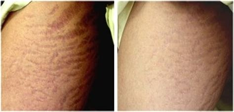 can stretch marks go away picture 3