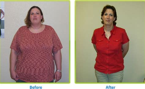 bariatrics weight loss picture 5
