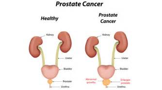 What does prostate cancer look like picture 5