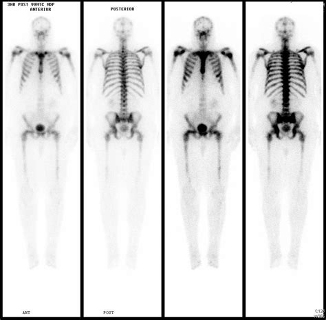 full bladder on a bone scan picture 17