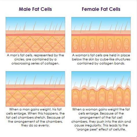 fat cellulite picture 1