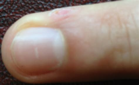 any treatment in nigeria for wart picture 5