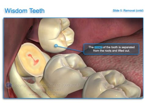 wisdom teeth removal picture 11