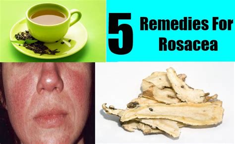 Homemade herbal for rosacea picture 1
