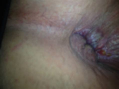 what do hemorrhoids look like picture 1