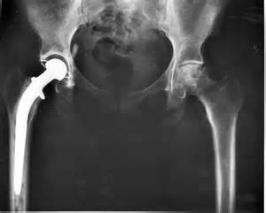 image of hip replacement joint picture 7